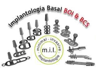 Implantologia Basal BOI & BCS